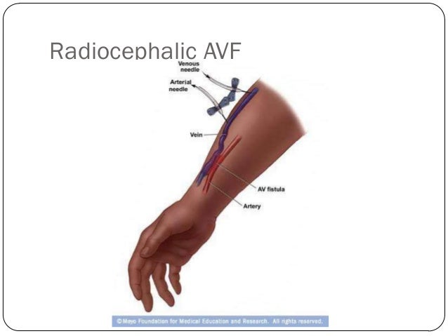 Role Of Surgery In Ca Oesophagus further 447 Main Vue Anterieure Muscles Vaisseaux Sanguins Et Nerfs Superficiels additionally 15424592 also 3299242 further 242406. on the radial vein