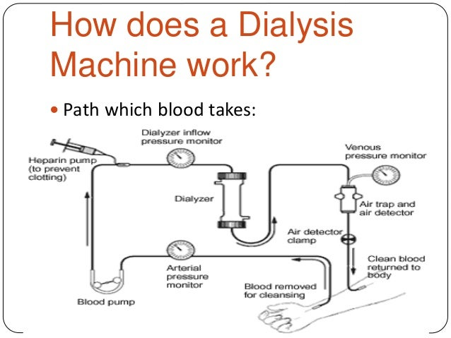 how a dialysis machine works