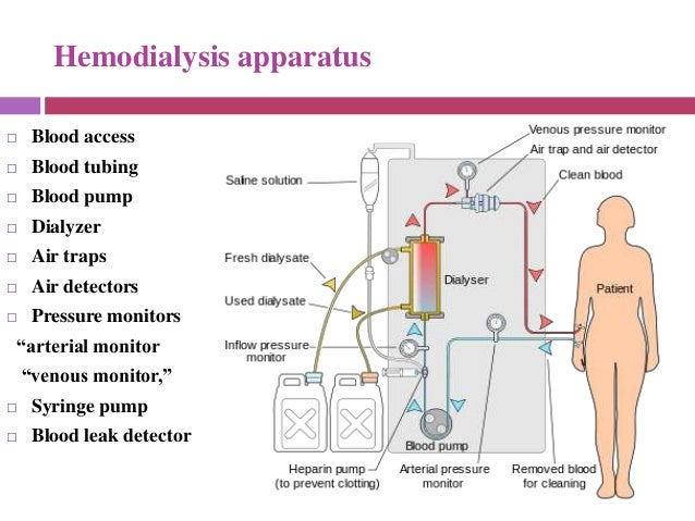 Dialysis various modalities and indices used