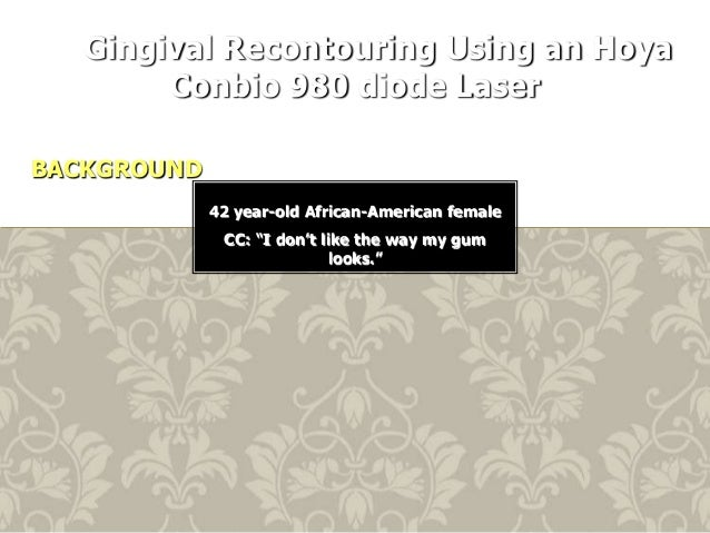 """Gingival Recontouring Using an Hoya Conbio 980 diode Laser BACKGROUND 42 year-old African-American female CC: """"I don't lik..."""