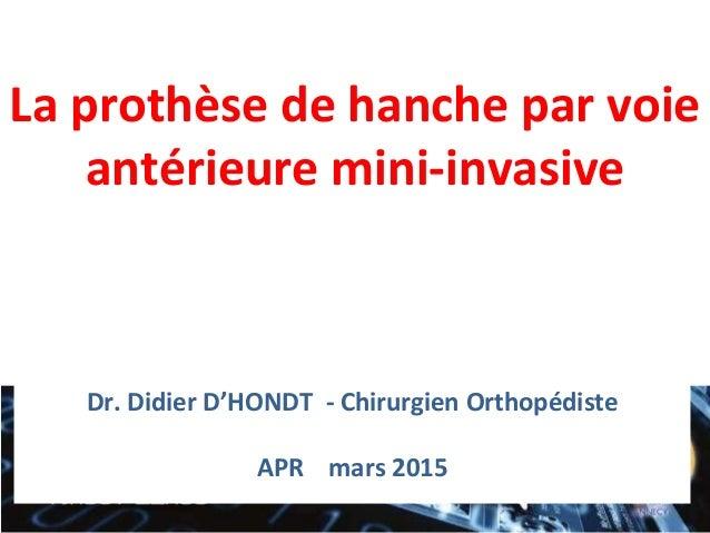 La prothèse de hanche par voie antérieure mini-invasive Dr. Didier D'HONDT - Chirurgien Orthopédiste APR mars 2015