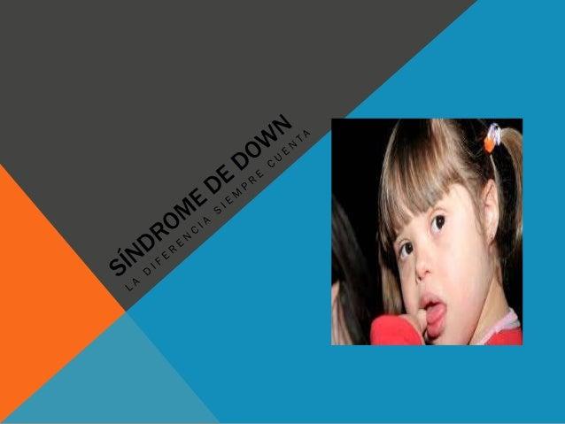 QUE ES EL SÍNDROME DE DOWN El síndrome de Down (SD) es un trastorno génico causado por la presencia de una copia extra del...