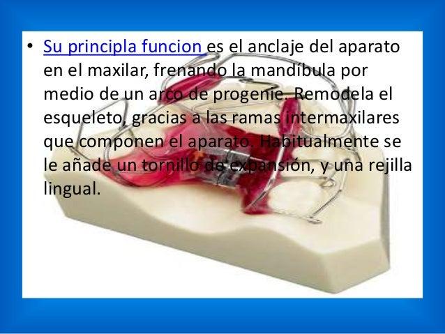 • Su principla funcion es el anclaje del aparato en el maxilar, frenando la mandíbula por medio de un arco de progenie. Re...