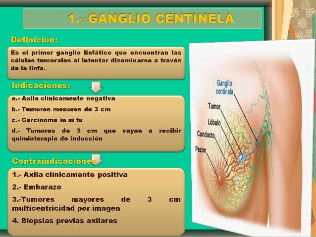 Diapositivas cancer de mama - Tratamiento para carcoma ...
