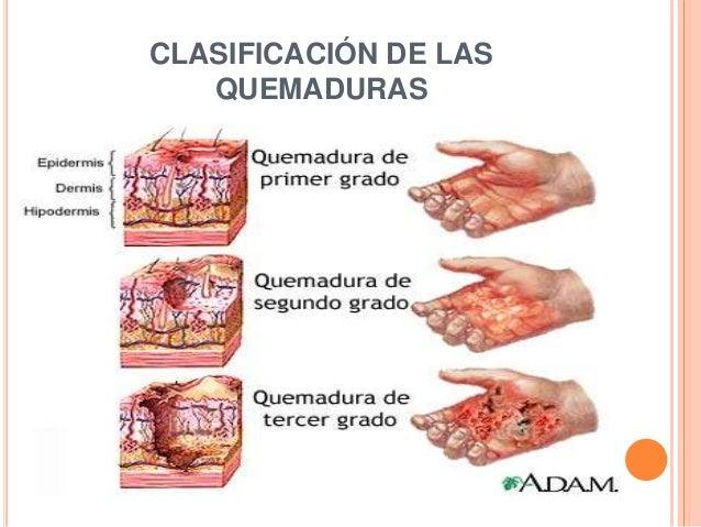 Las manchas negras en la piel cerca del hígado