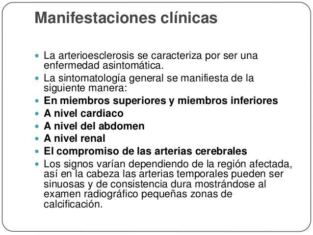 ESCLEROSIS DE LA MEDIA DE MÖNCKEBERG Abstract  MÖNCKEBERG'S arteriosclerosis is a clinically benign form of calcification...