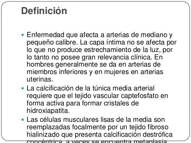 Epidemiología  La calcificación de Monckeberg media es una condición más frecuente en personas mayores de 50 años de edad...
