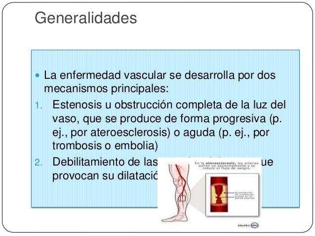 Estructura y función de los vasos sanguíneos  Para acomodarse al flujo pulsátil y a las presiones arteriales más altas, l...