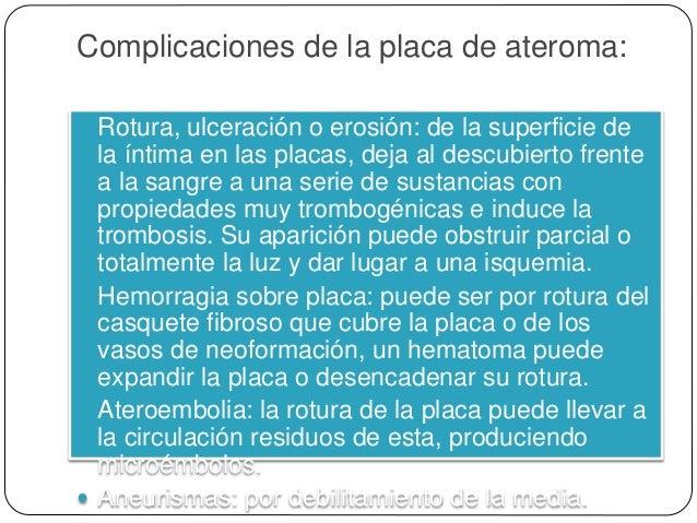Morfología Macroscópica  Placa ateroesclerótica.  Las características clave de estas lesiones son el engrosamiento de la...