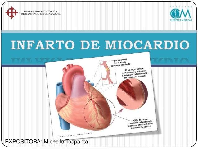 El I.M. se produce por una isquemia, ésta puede deberse a una oclusión de la arteria coronaria a través de trombos o tambi...