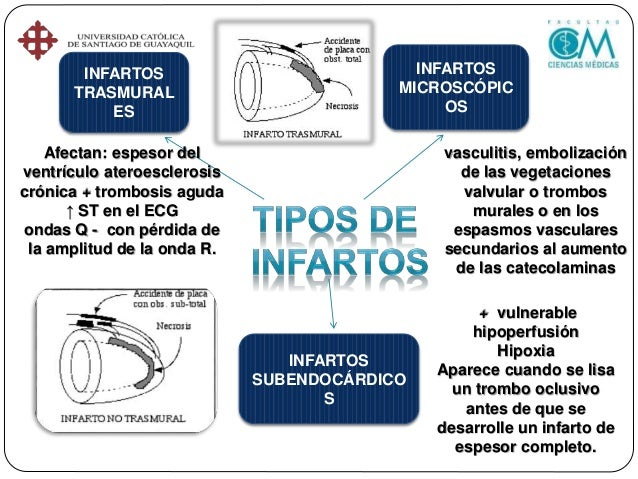 Tipo 4a: I.M. Relacionado a intervención coronaria percutánea Elevación en Troponina C > 5 veces acompañado de: a) síntoma...