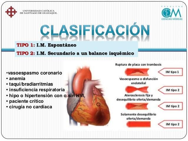 Tipo 5: I.M. Relacionado con cirugía de revascularización miocárdica Elevación de los biomarcadores cardíacos a niveles ma...