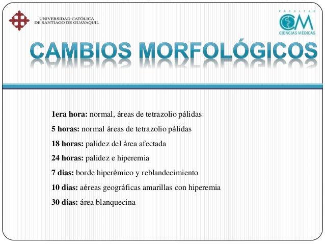 •Pericarditis aguda •Embolia pulmonar •Disección aortica aguda •Aumento de la rigidez esofágica