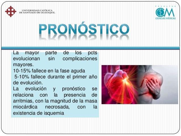 La comunicación interauricular es un defecto cardíaco congénito. Mientras el bebé se desarrolla en el útero, se forma el t...