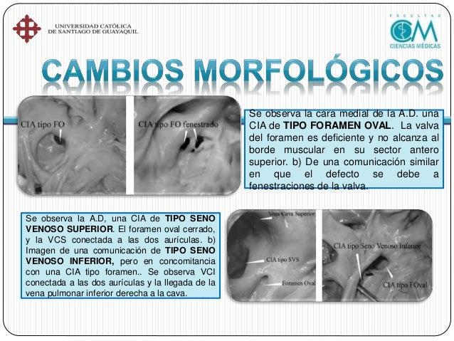 •Infecciones frecuentes del aparato respiratorio. •Fatiga o disnea cuando el cortocircuito es importante. •Arritmias supra...