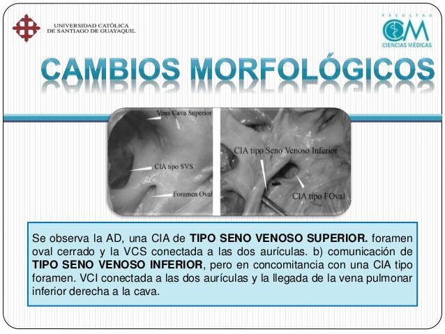 •Radiografía de tórax •Electrocardiograma •Ecocardiograma •Estudio de hemodinamia pulmonar •Cateterismo diagnóstico