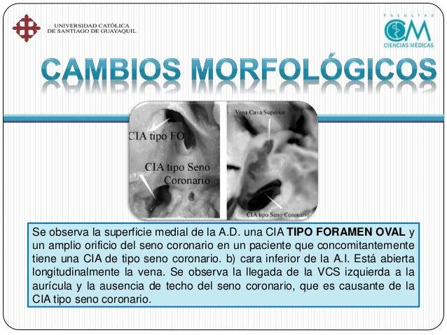 •Comunicación ventricular (CIV). •Ductus Arterioso Persistente. •Canal Auriculoventricular.