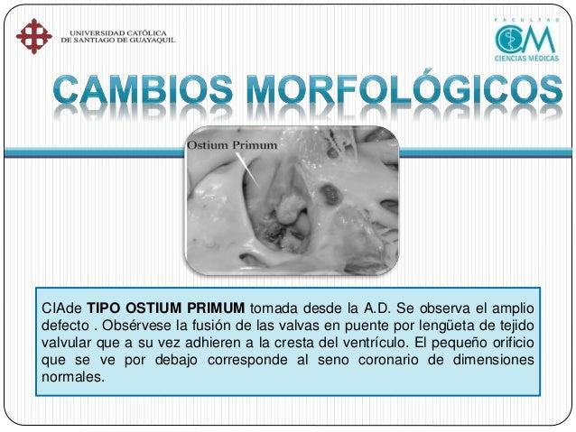 •Cateterismo terapéutico •Cirugía