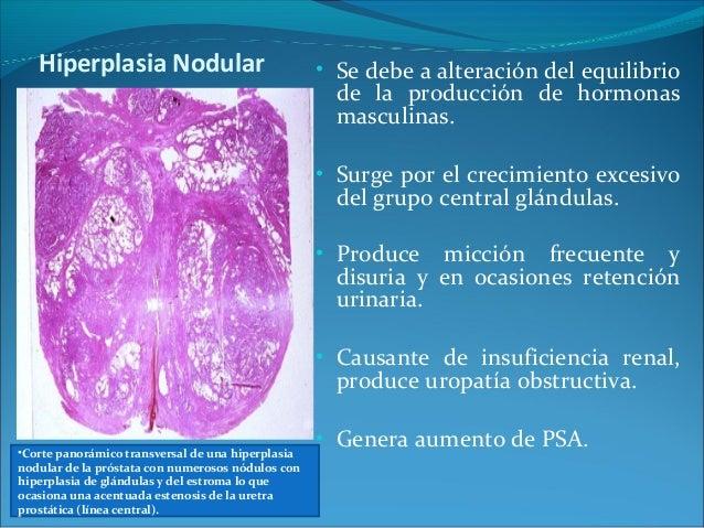 Hiperplasia nodular de prostata