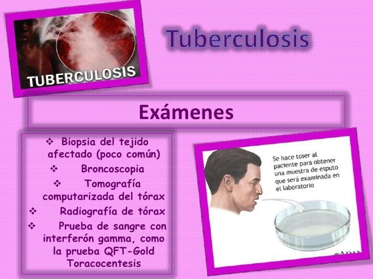 Exámenes    Biopsia del tejido   afectado (poco común)         Broncoscopia          Tomografía  computarizada del tóra...