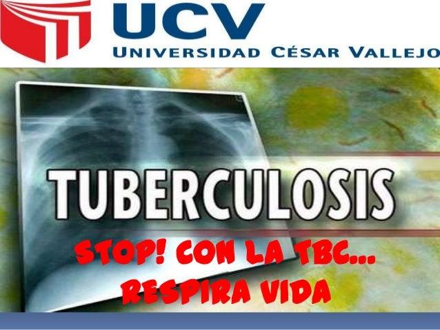 STOP! CON LA TBC… RESPIRA VIDA