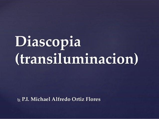 Diascopia (transiluminacion)  P.I. Michael Alfredo Ortiz Flores