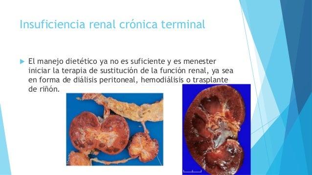 Insuficiencia renal fase terminal