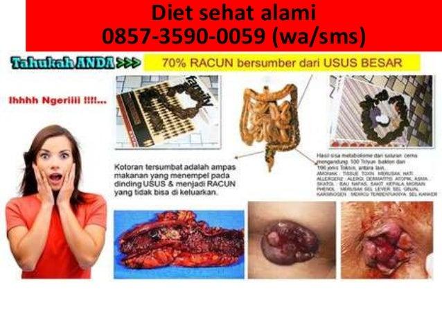 0857-3590-0059 wa sms diet sehat cepat alami