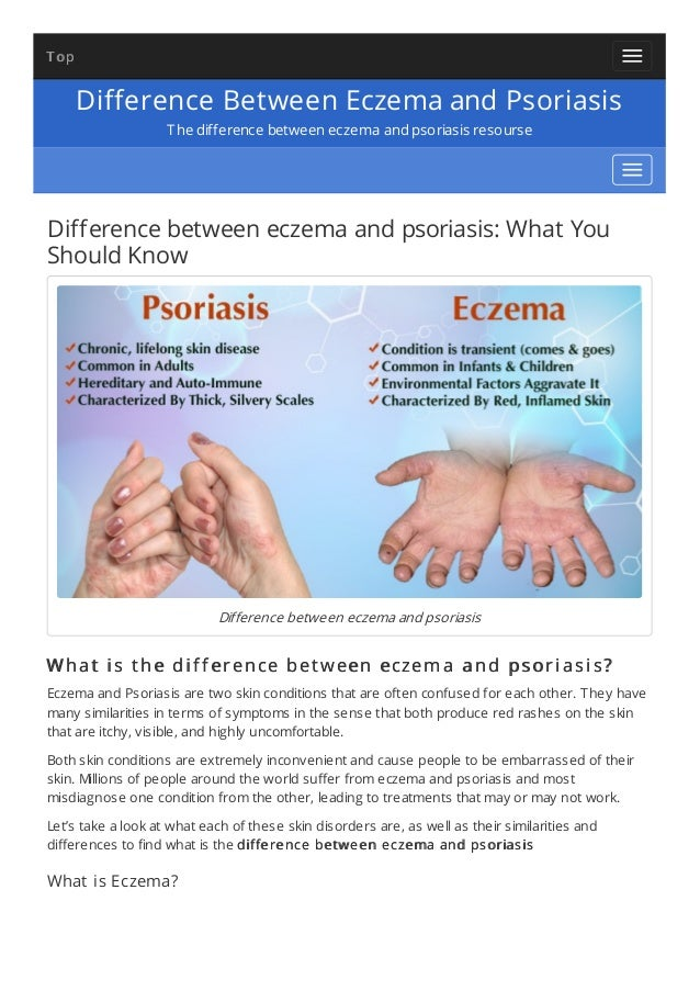 difference between eczema and psoriasis, Skeleton