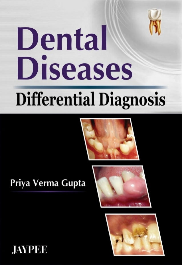 Differential Diagnosis Of Dental Diseases