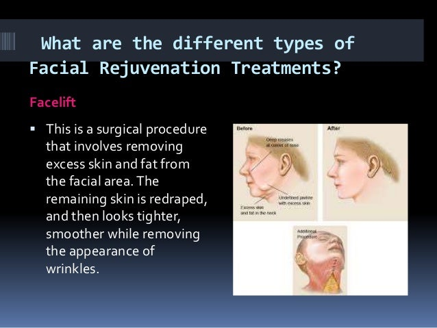 Amazing Different Types Of Facials For Skin Rejuvenation Hairstyle Inspiration Daily Dogsangcom