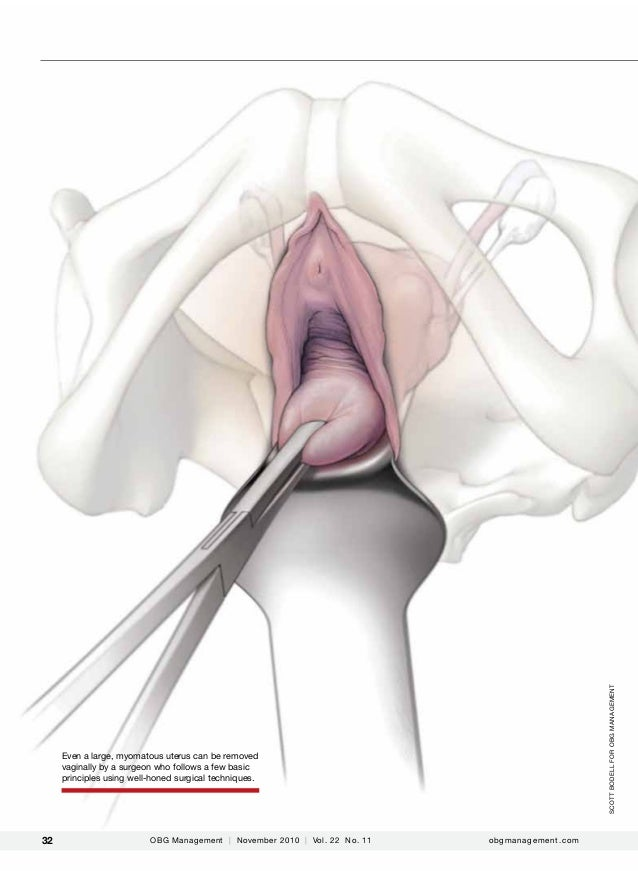scott bodell for obg Management  Even a large, myomatous uterus can be removed vaginally by a surgeon who follows a few ba...
