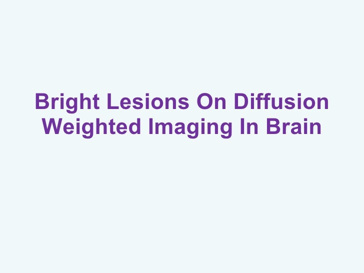 Bright Lesions On Diffusion Weighted Imaging In Brain
