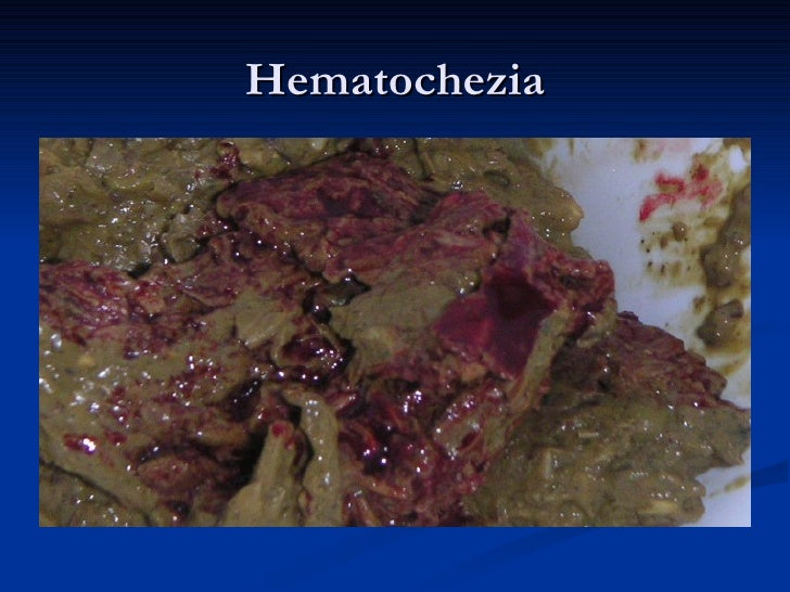Colonoscopy Hematochezia Cachexia Anastomosis