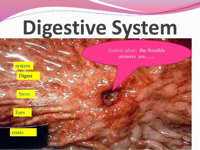 Digestive System Gastric ulcer: the Possible answers are…….. Digest Stem Eyes system testis