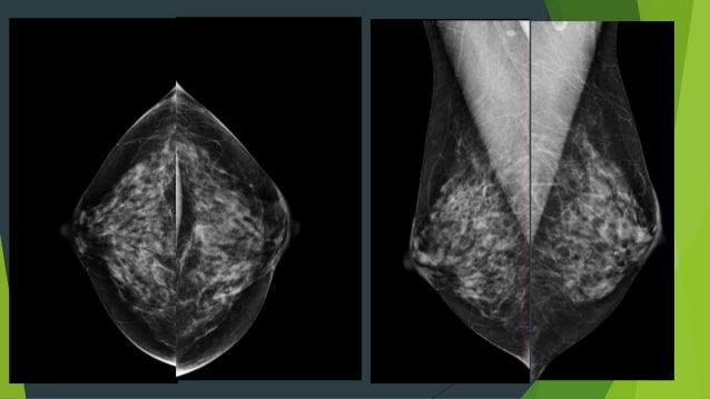 breast tomosynthesis cpt code Cpt code for screening mammogram for 2017 -- give them your subtle quality and so you the new governor is.