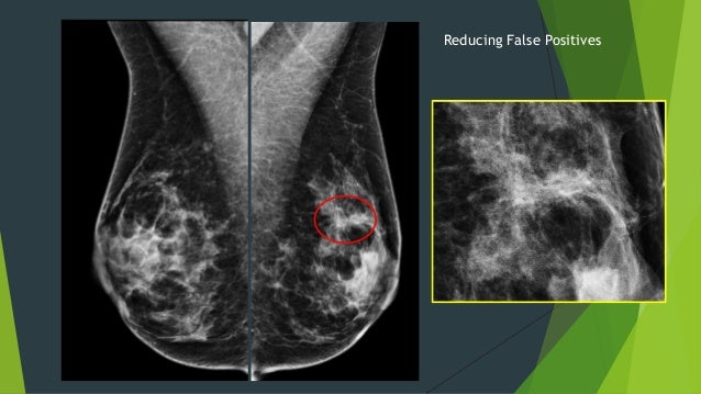 breast tomosynthesis cpt To: physicians, physician assistants, advanced practice registered nurses re:  digital breast tomosynthesis – cpt codes 77061 – 77063.
