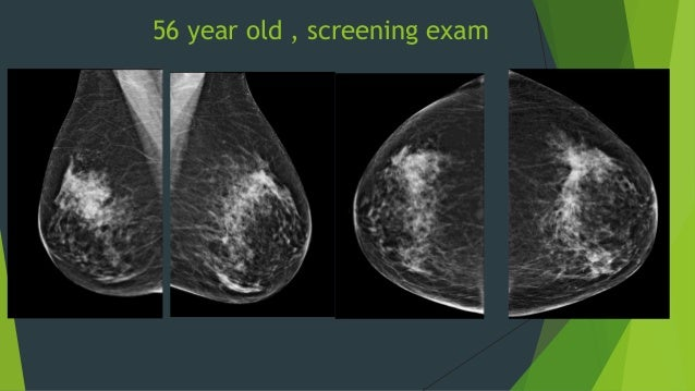 what is digital tomosynthesis 3d/tomosynthesis mammography is revolutionary state of the art technology that allows radiologists to see through the breast tissue, layer by layer, more closely by minimizing overlapping breast tissues.