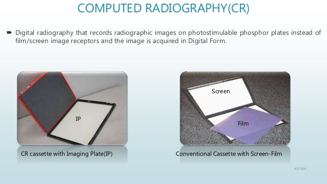 cr vs dr image how to tell