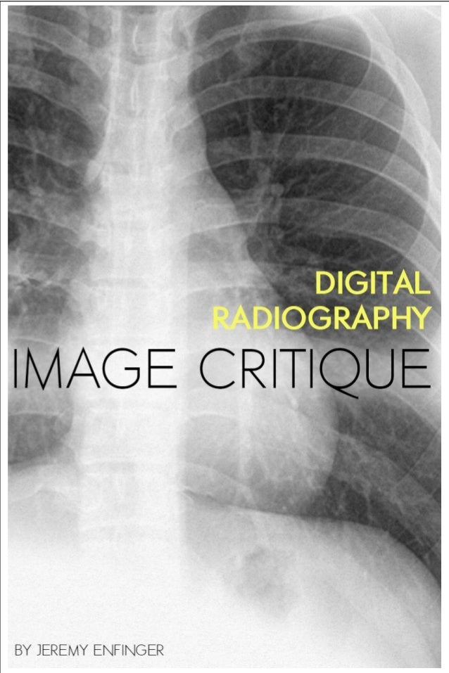 digital radiography image critique rh slideshare net SI Joints Ferguson View Positioning Radiographic Positioning Chart