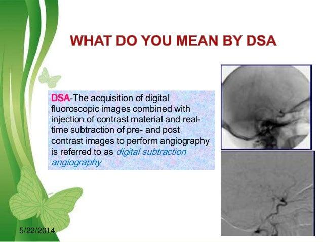 Digital subtraction angiography Slide 3