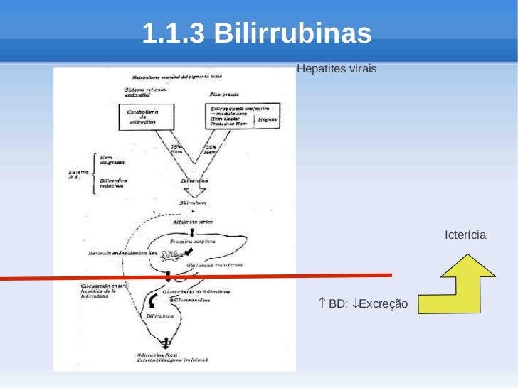 1.1.3 Bilirrubinas            Hepatites virais                                  Icterícia                ↑ BD: ↓Excreção