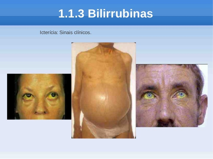 1.1.3 BilirrubinasIcterícia: Sinais clínicos.