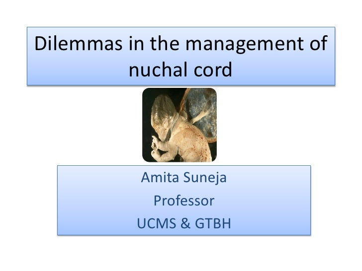 Dilemmas in the management of nuchal cord<br />Amita Suneja<br />Professor<br />UCMS & GTBH<br />