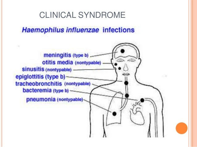 haemophilus influenzae type b vaccine