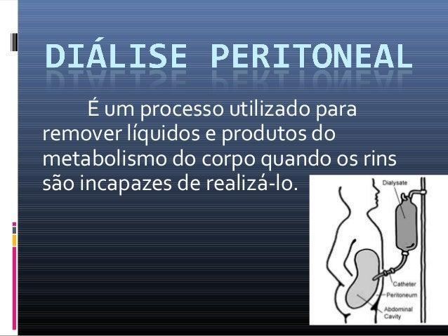 É um processo utilizado para  remover líquidos e produtos do  metabolismo do corpo quando os rins  são incapazes de realiz...