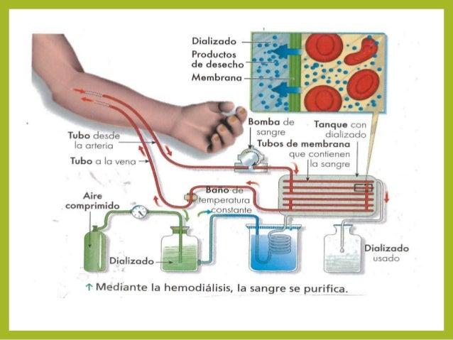 Psoriaznyy la artritis a los niños la causa