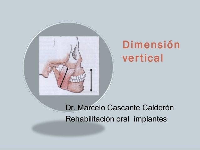 Dimensión               ver ticalDr. Marcelo Cascante CalderónRehabilitación oral implantes
