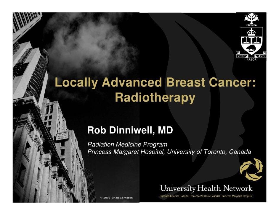 Locally Advanced Breast Cancer:           Radiotherapy       Rob Dinniwell, MD      Radiation Medicine Program      Prince...