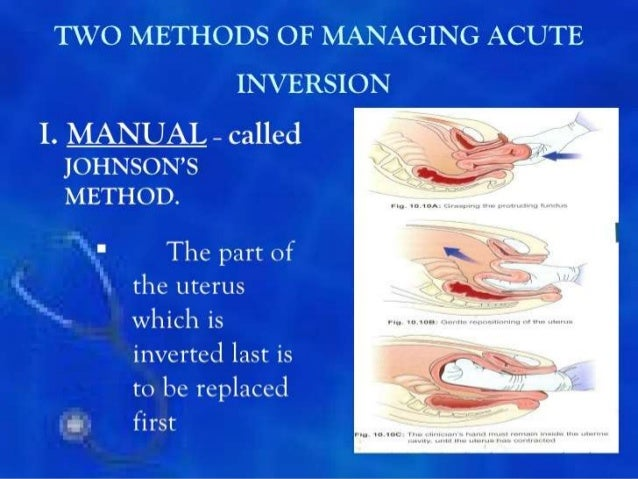 Uterine inversion.